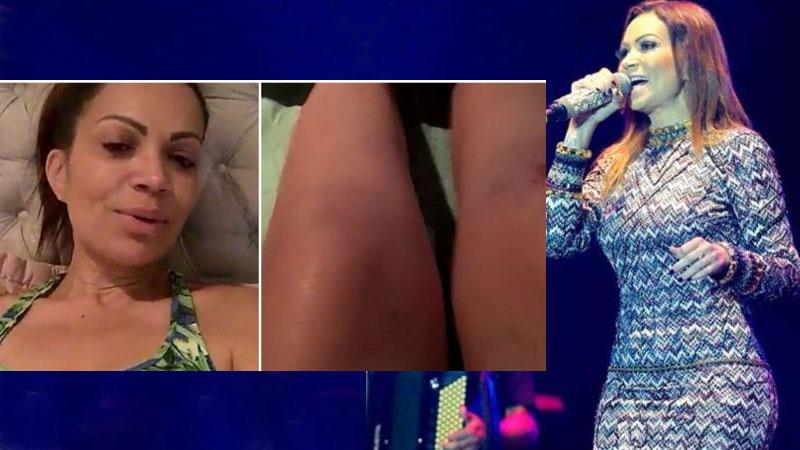 Solange Almeida cai no palco e fica ferida